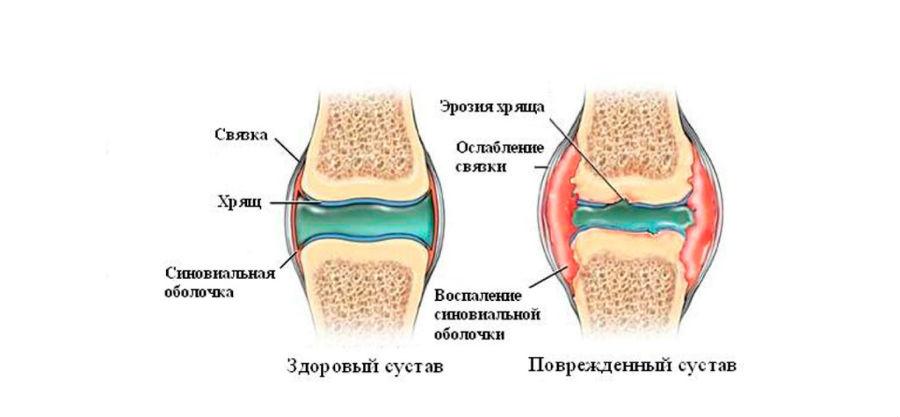 лечение суставов днепр