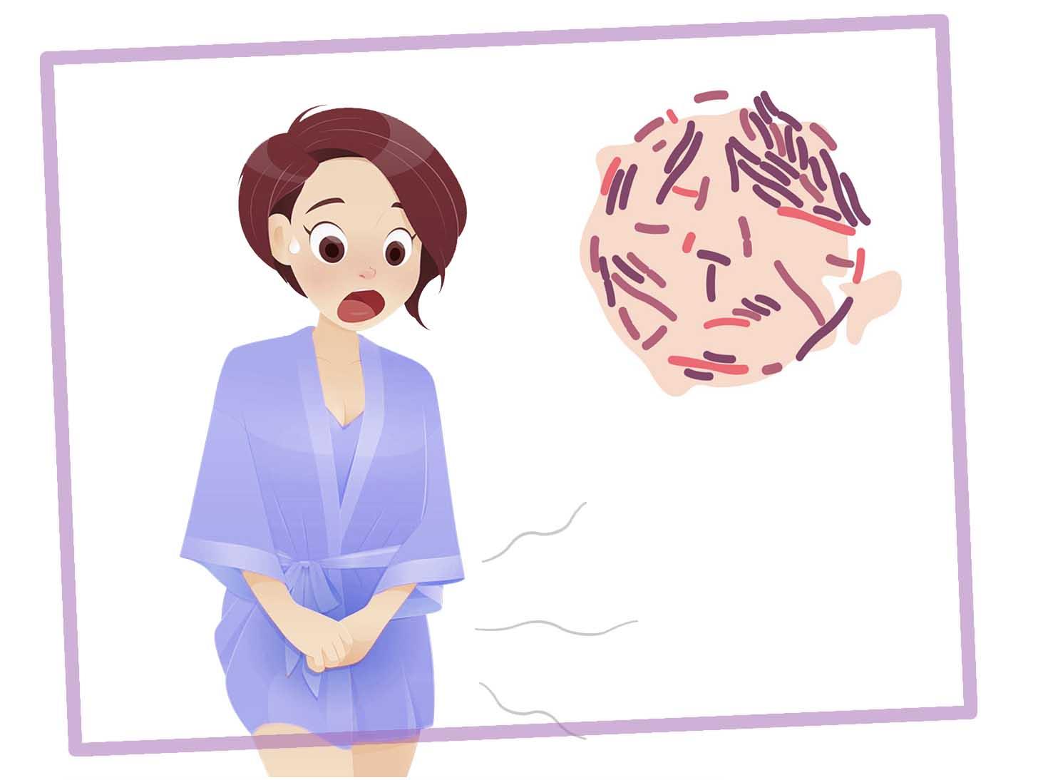 лечение молочницы днепр