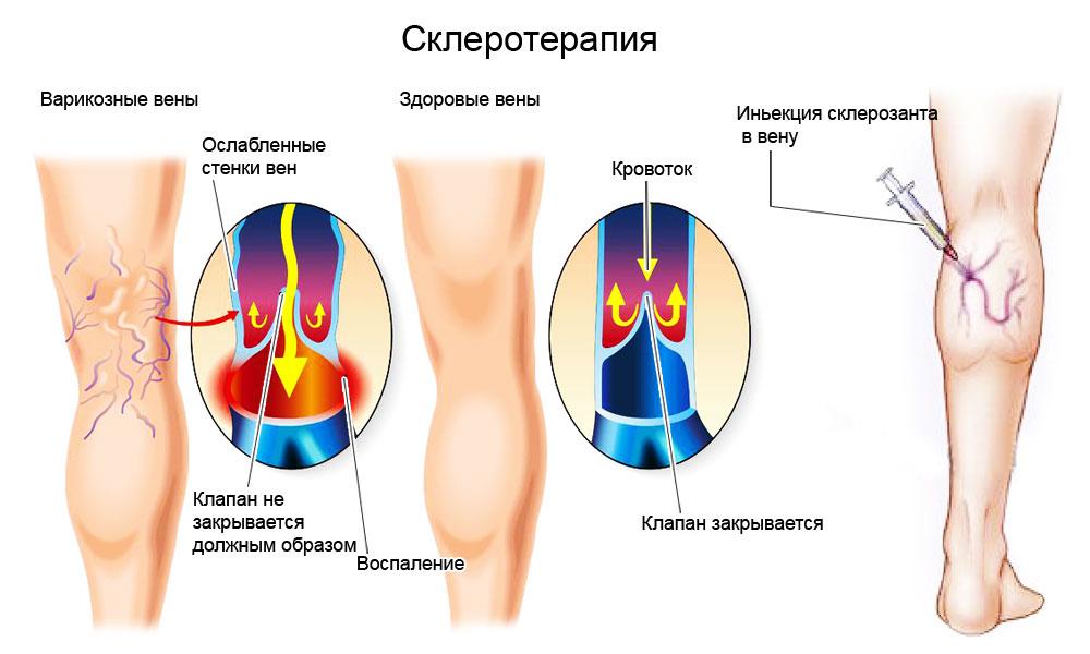 лечение варикоза днепр